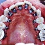 Dentista Dr. Stefano Oddini carboni