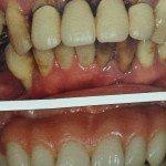 Dentista centro dentale silvio pellico